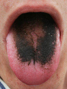 picture of an example of a black tongue