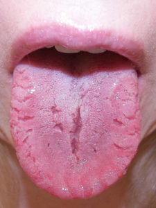 picture of an example of tongue fissures