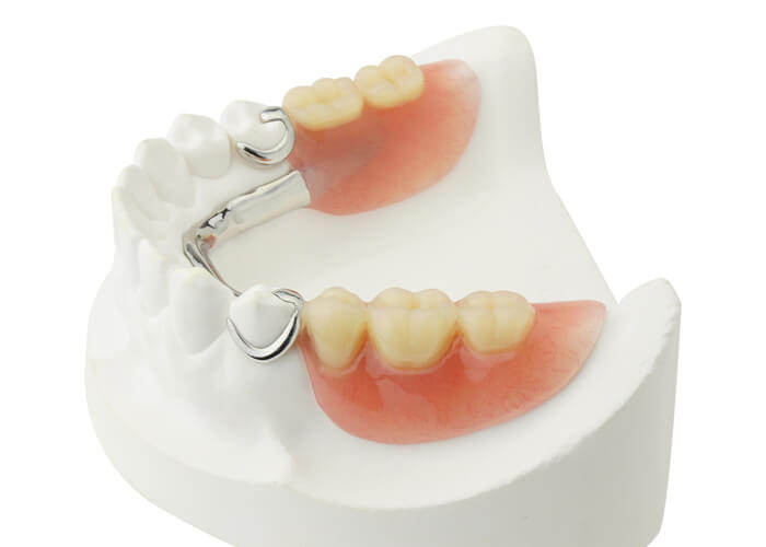 photo of a partial set of Dentures - Dr. Jeff Lineberry
